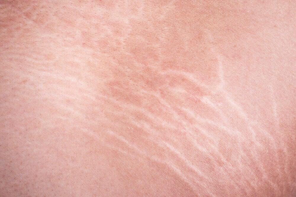 Tratamiento de aceite de ricino y aloe vera para aclarar las estrías