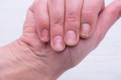Preparado casero para quitar el aspecto amarillento de las uñas