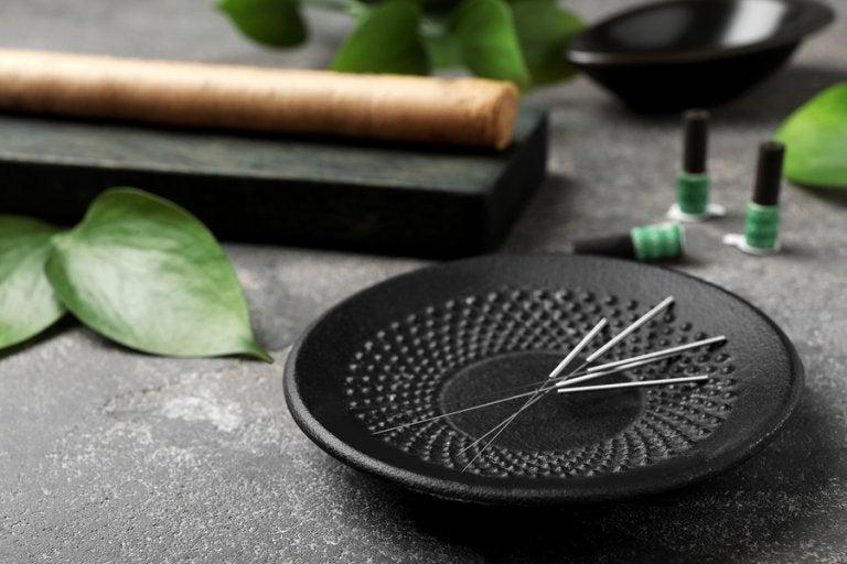 5 beneficios de la acupuntura que te gustará saber