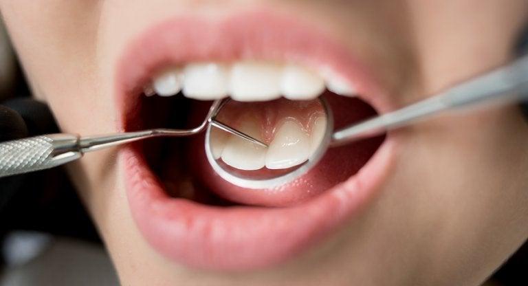 7 consecuencias para tu salud de una mala higiene dental