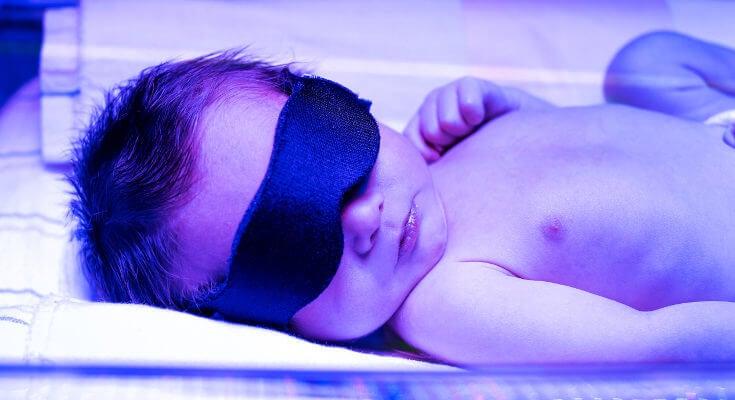 Recién nacido con antifaz en los ojos expuesto a luz ultravioleta.