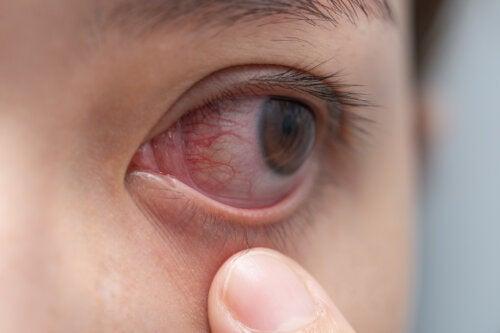 Remedios caseros para aliviar la inflamación ocular por cansancio