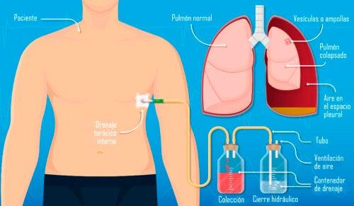 Toracostomía con aguja, técnica y cuidados posteriores