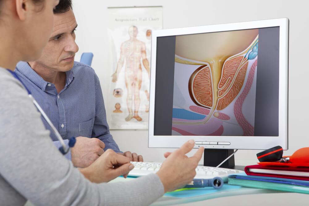 Urólogo atendiendo a un paciente con hiperplasia prostática