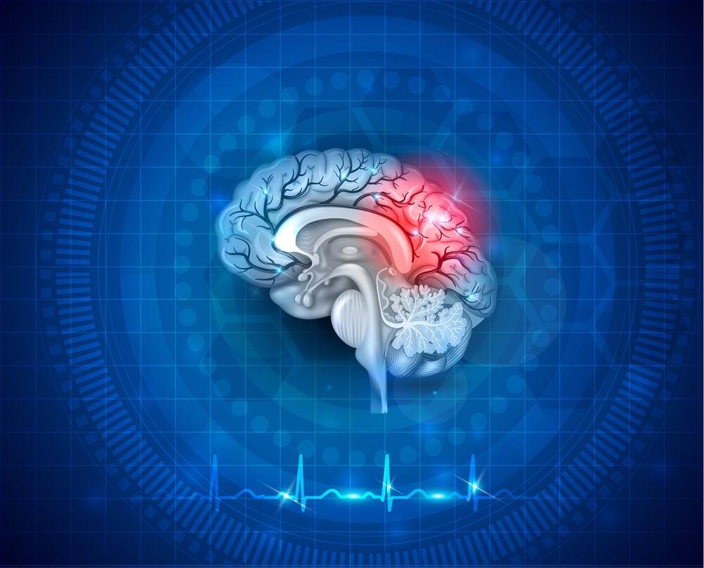 representación de un accidente cerebrovascular