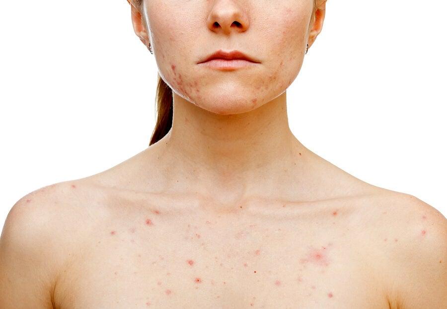 acné en las mujeres