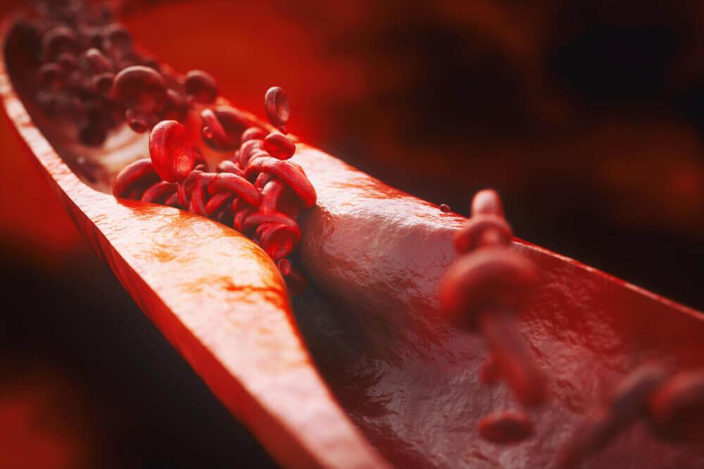 Estrechamiento de las arterias y vasos sanguíneos.