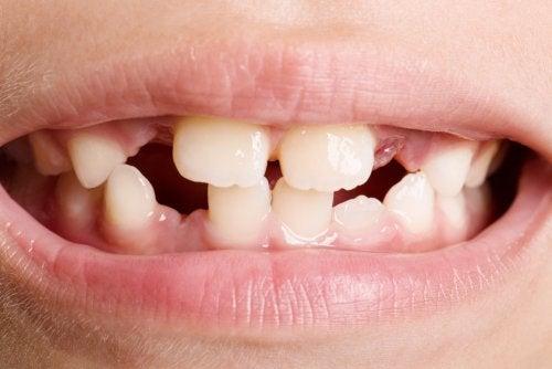 agenesia dentale genetica de