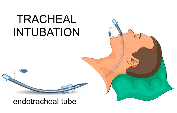 Representación de tubos endotraqueales y su uso