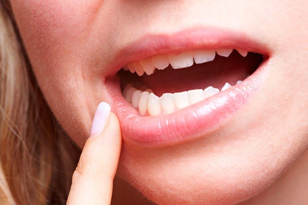 Cuidado bucal en la diabetes: 6 consejos