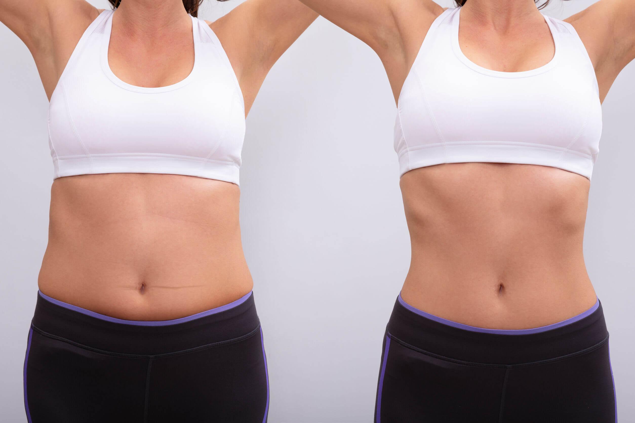 Para identificar si tienes problemas de tiroides debes estar atento a los cambios de peso.