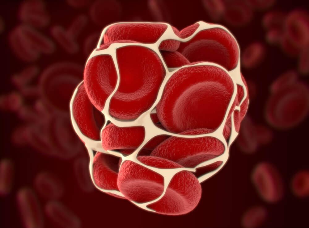 Coágulo de sangre: un riesgo para la salud.