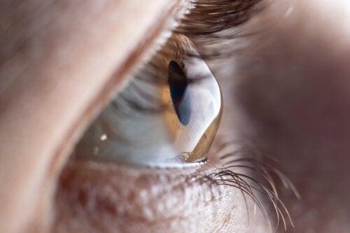 Cuidados tras el trasplante de córnea