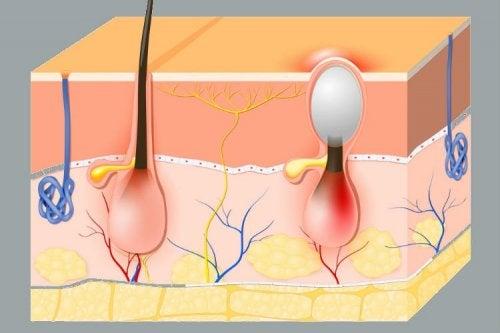 Fisiología del folículo piloso y el forúnculos vaginales