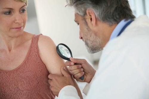 Qué es el test ABCDE para dermatología