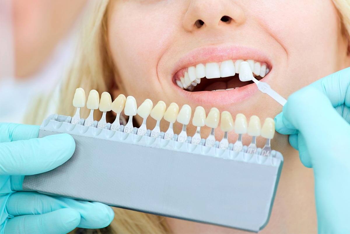 Blanqueamiento dental para quitar manchas.