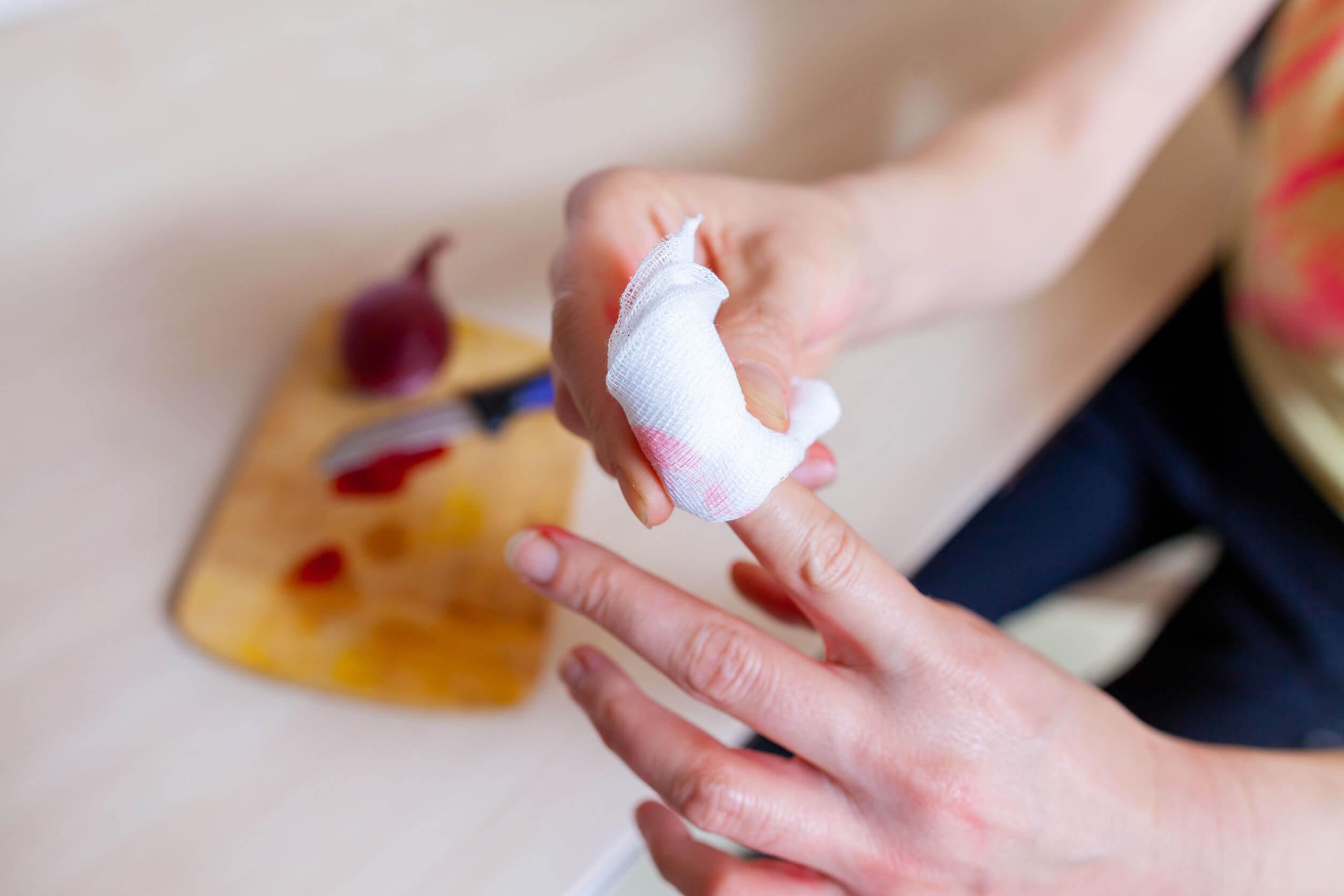 Para evitar que se infecte una herida es importante limpiar