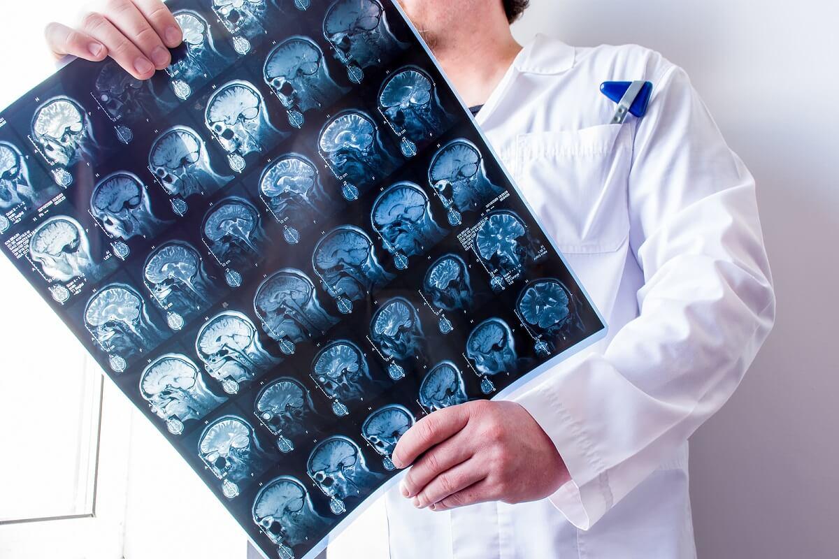 Médico examen del cerebro