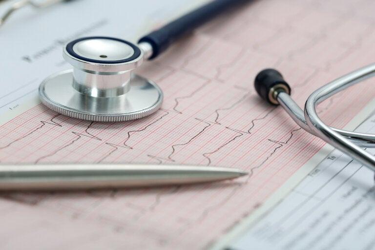 Lo que no sabías de las arritmias cardíacas