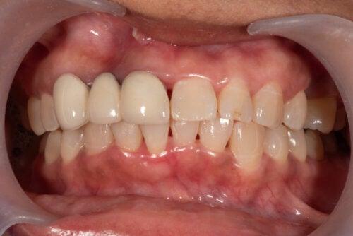 ¿Qué es un absceso dental y cómo debe tratarse?