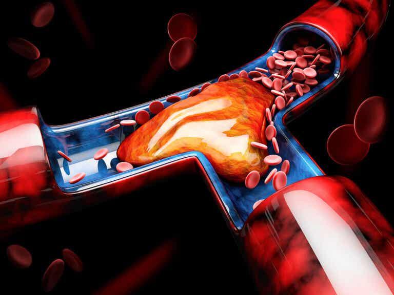 Cómo detectar y prevenir la trombosis venosa profunda