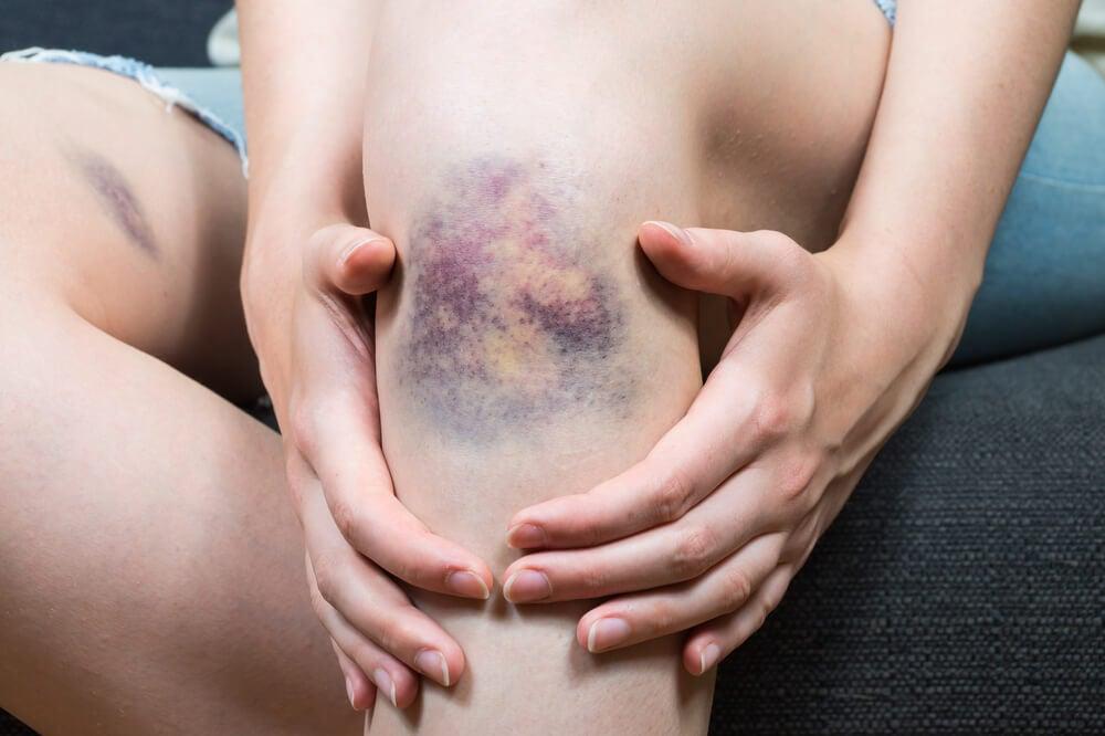 10 síntomas de cáncer que muchos ignoran