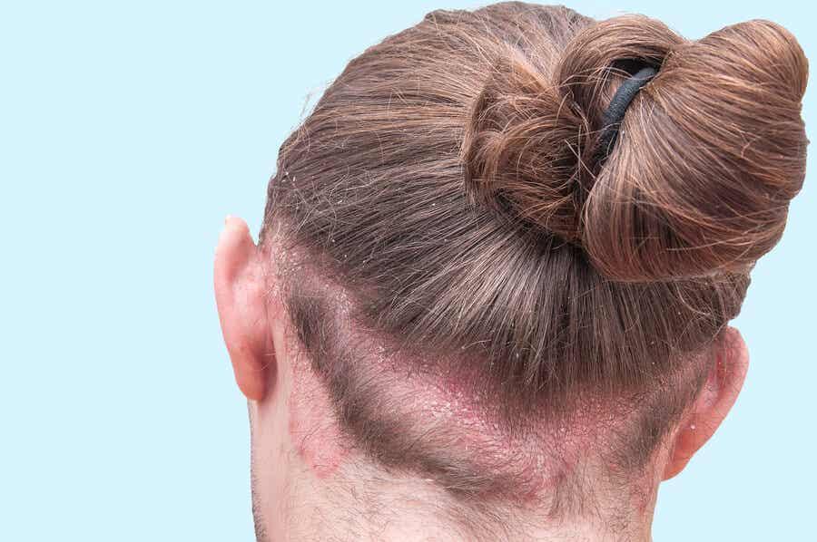 Dermatitis seborreica en una mujer.