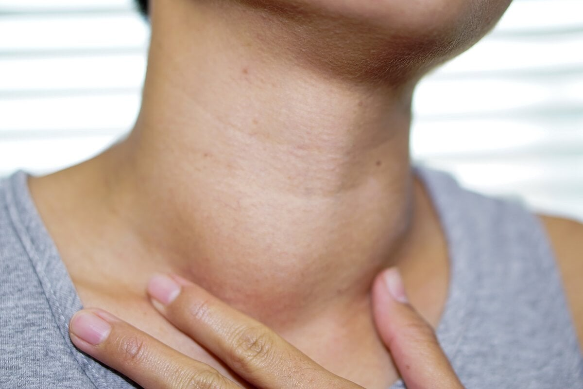 Paciente con hipertiroidismo