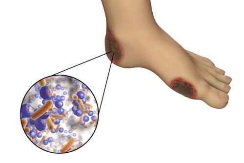 Diabetes y gangrena: cuáles son los riesgos y cómo evitarlo