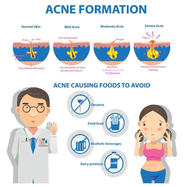 cómo se forma el acné