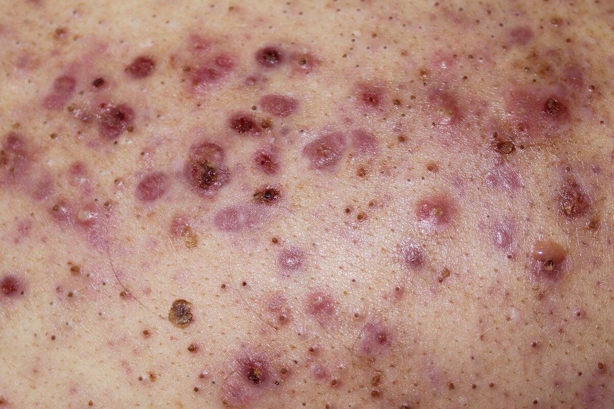 Persona con acné conglobata en las espalda.