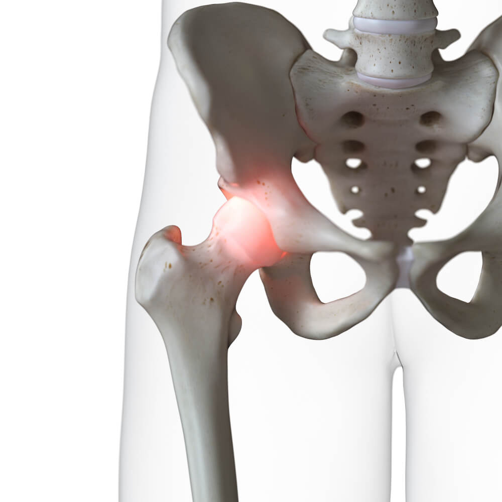 cadera articulación sobrecarga