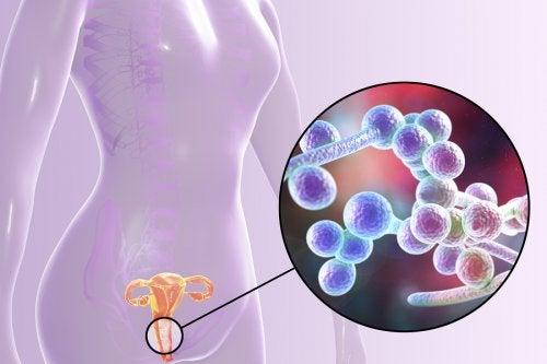 Qué sabes de la candidiasis vulvovaginal