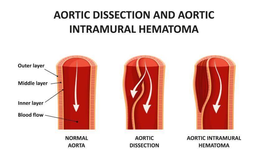 disección aórtica arteria vasos