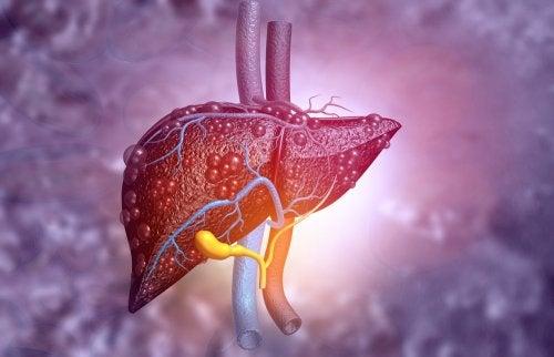 Atresia biliar: síntomas y tratamiento