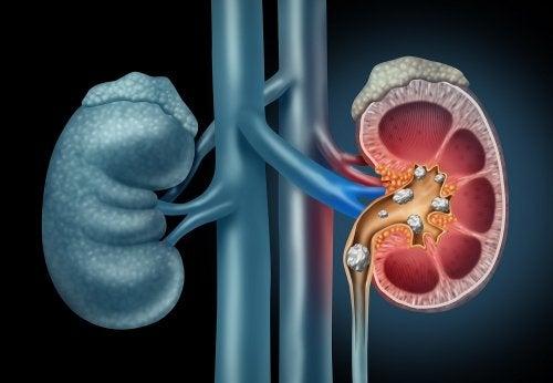 Dieta para las piedras en los riñones: consejos y ejemplos de menús