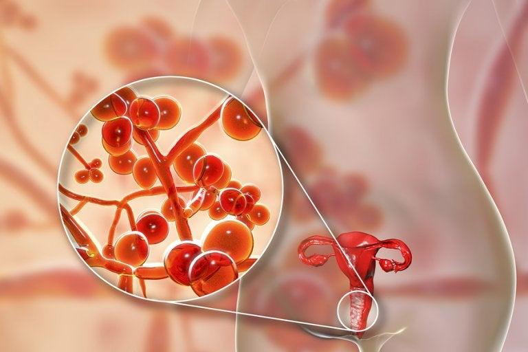 Micoplasma genital: causas, síntomas y tratamiento