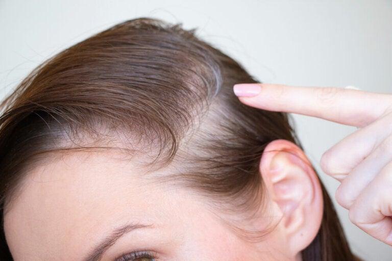 ¿Qué sabes de la alopecia postparto?