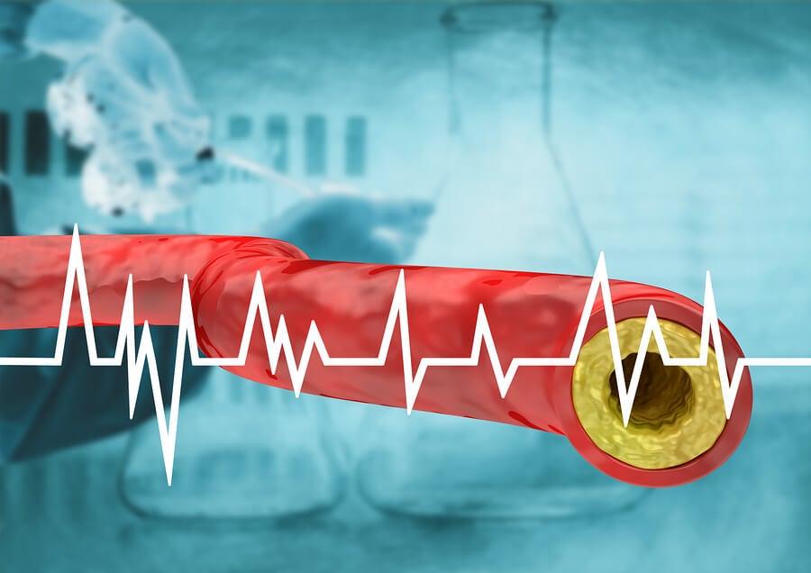Acumulación de colesterol
