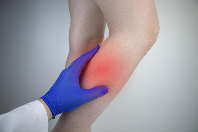¿Qué es un desgarro muscular de la pantorrilla?