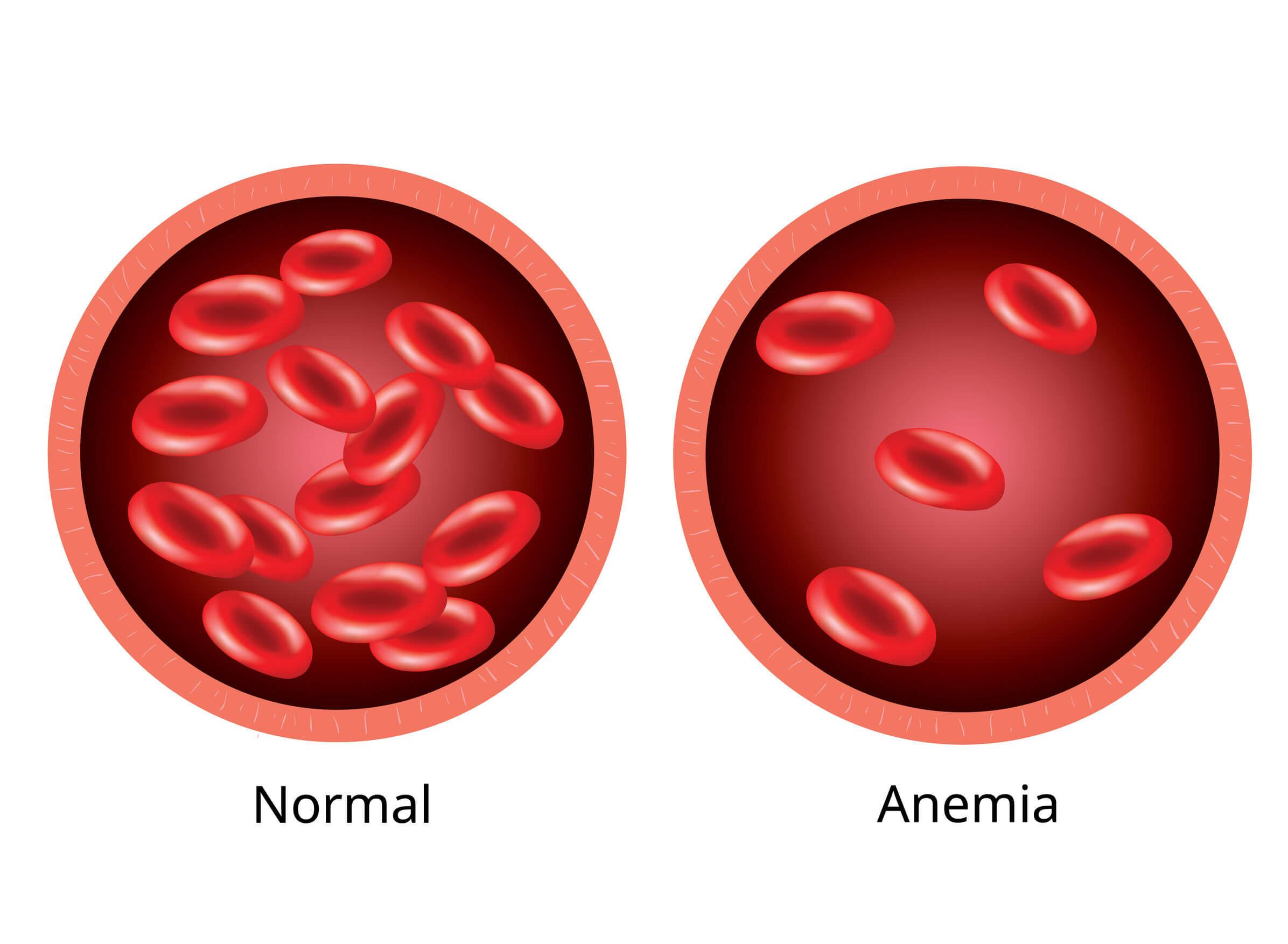 La anemia en niños se debe a problemas con los glóbulos rojos.