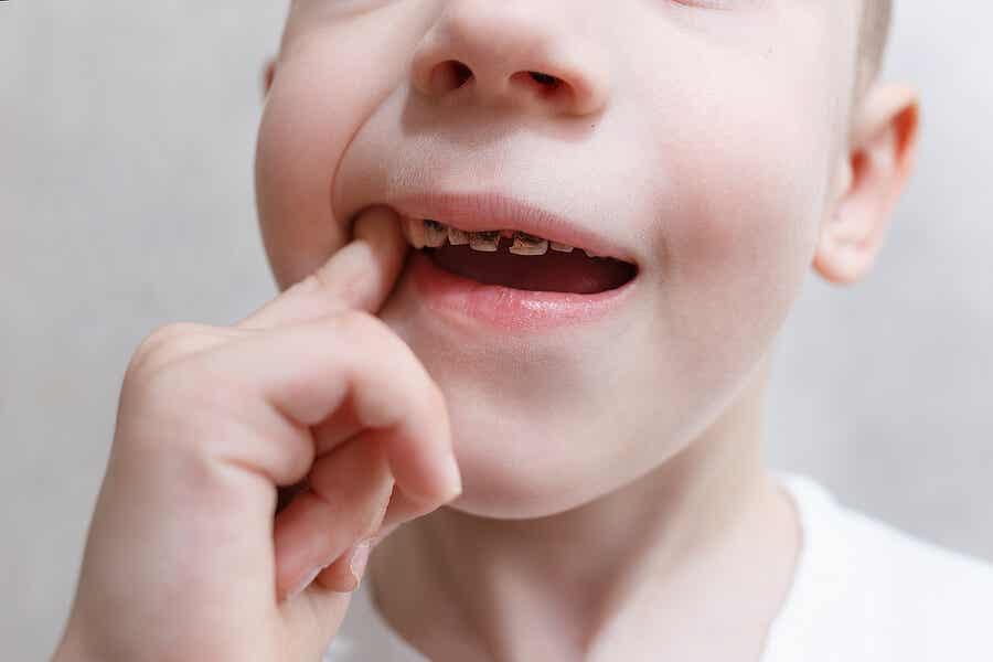 niño con caries y un dedo en la boca