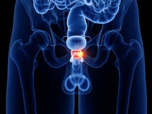 Hábitos para cuidar la salud de la próstata