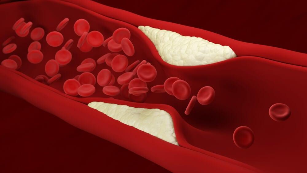 arterioesclerosis en el síndrome de Werner