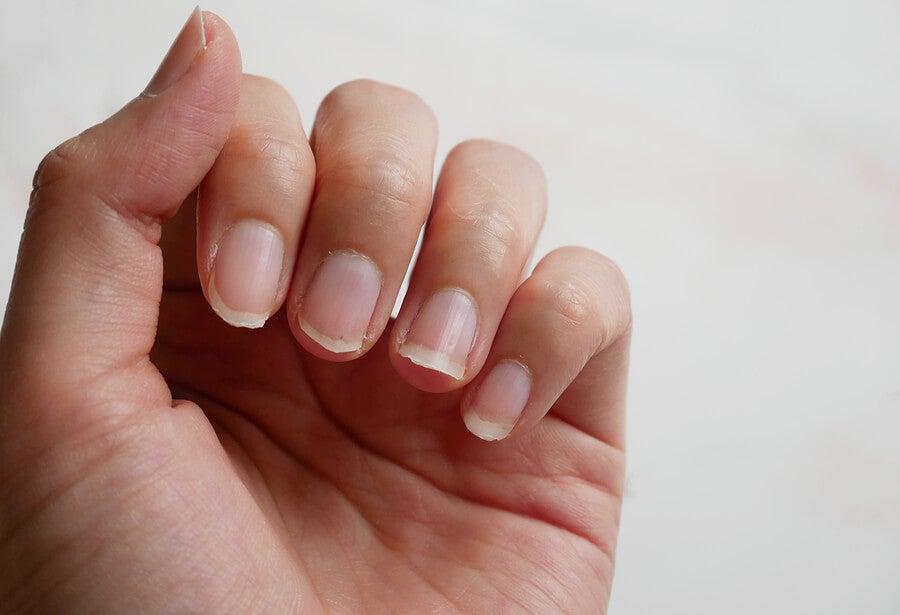 4 ingredientes naturales para tratar las uñas quebradizas