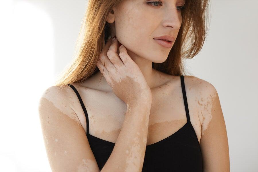 https://mejorconsalud.com/wp-content/uploads/2019/06/vitiligo.jpg