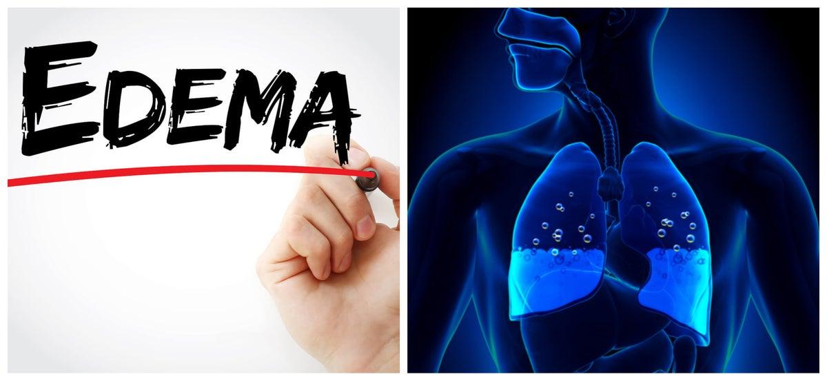 ¿la hipertensión pulmonar aumenta la pérdida de peso pulmonar?