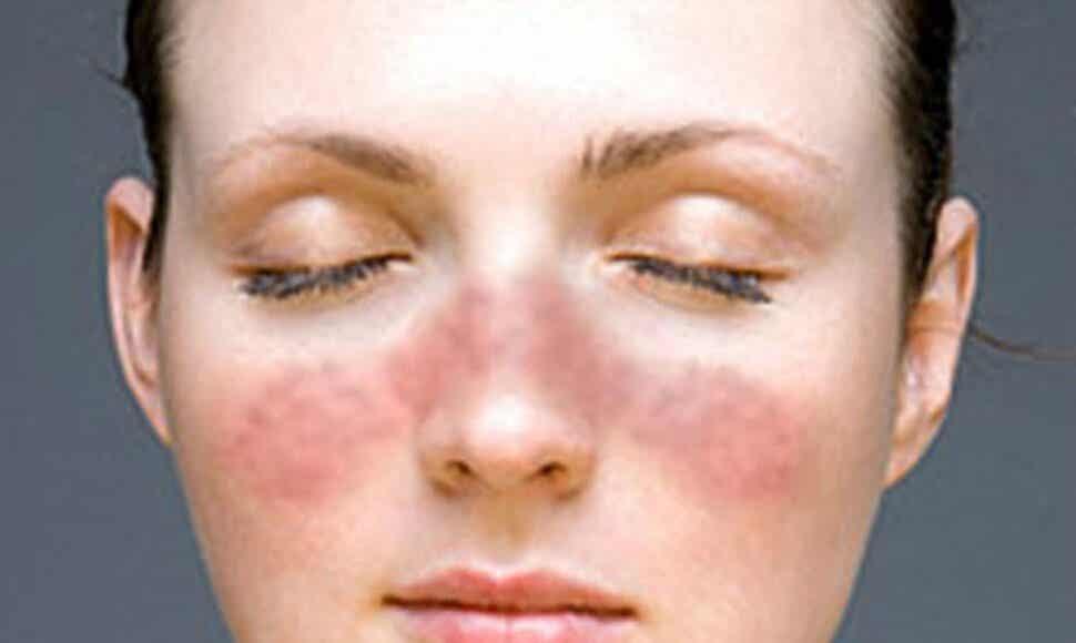 Erupción del lupus.