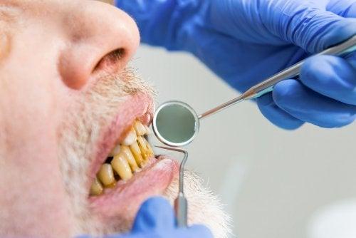 Perjuicios del tabaco en la cavidad oral