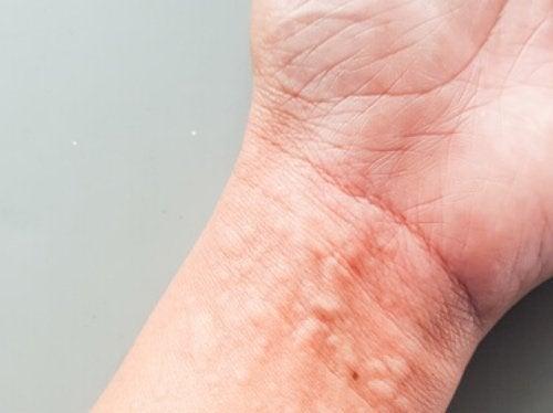 Urticaria crónica: ¿cómo afecta a tu calidad de vida?